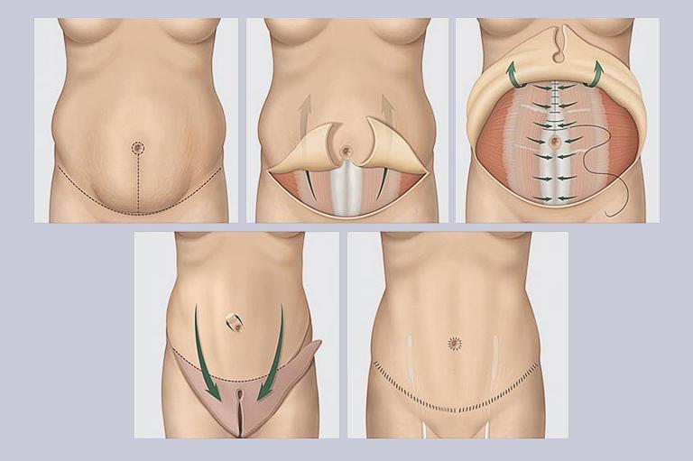 Hirurgicheskoe udalenie diastaza