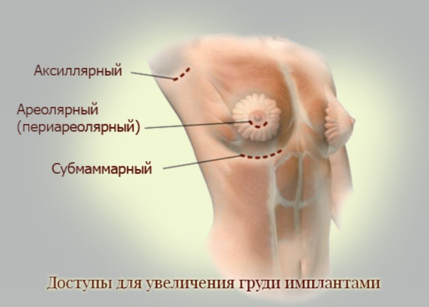 Dostupy dlya uvelicheniya grudi implantami
