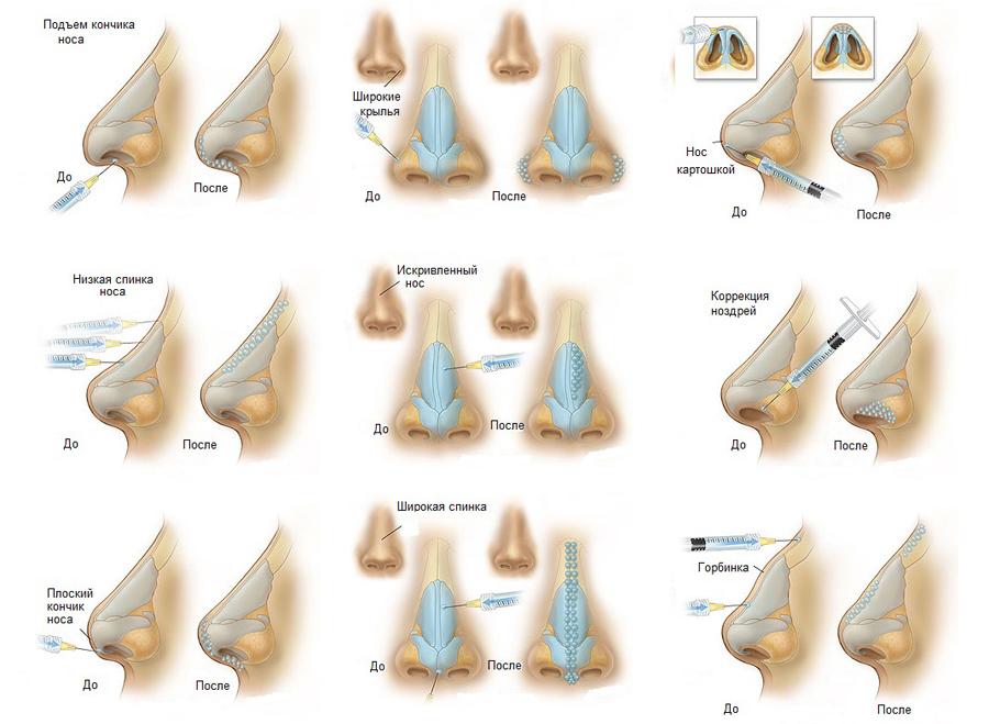 Konturnaya plastika nosa