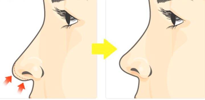 Plastika konchika nosa