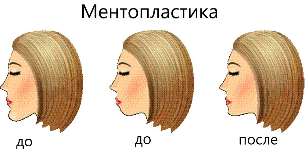 Mentoplastika2