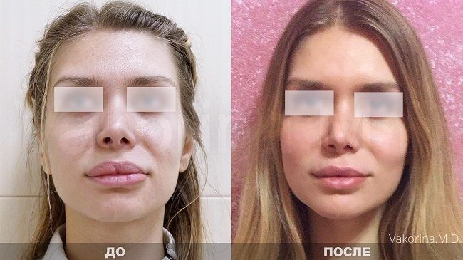 Before after 39