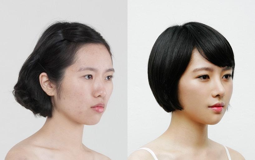 Asian nose surgery