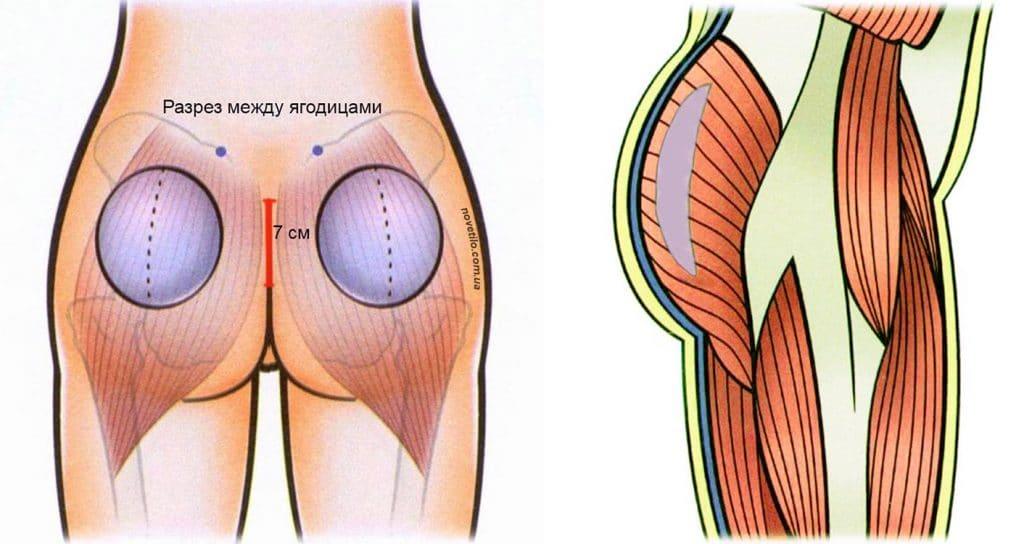 Gluteoplasty