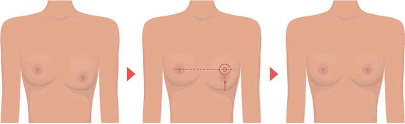 Asymmetry of the breast2