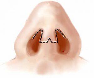 Open rhinoplasty
