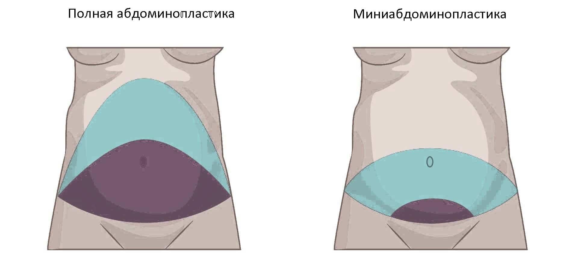Abdominoplastika 1