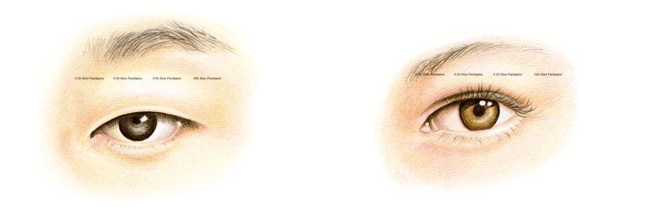 Blepharoplasty of asian eyes