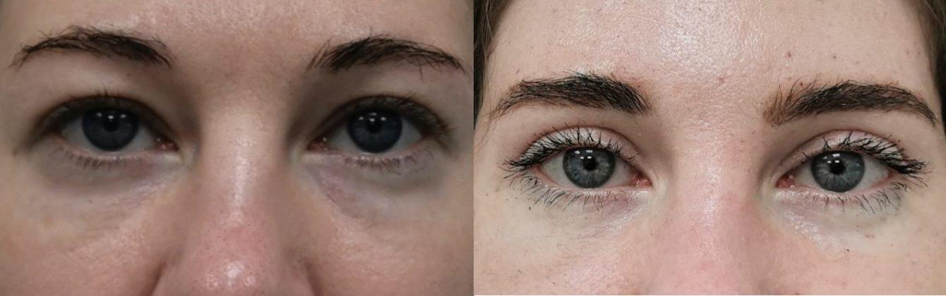 Моя блефаропластика: смотрю молодыми глазами