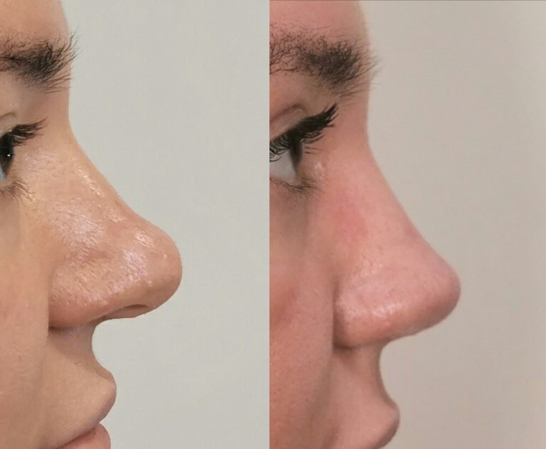 Blefaroplastiku s nosom ne ostavili nos
