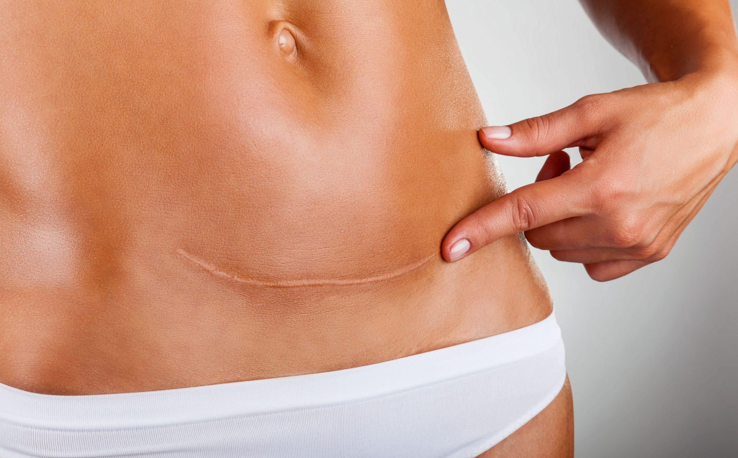 Шрамы на теле – больше это не проблема!