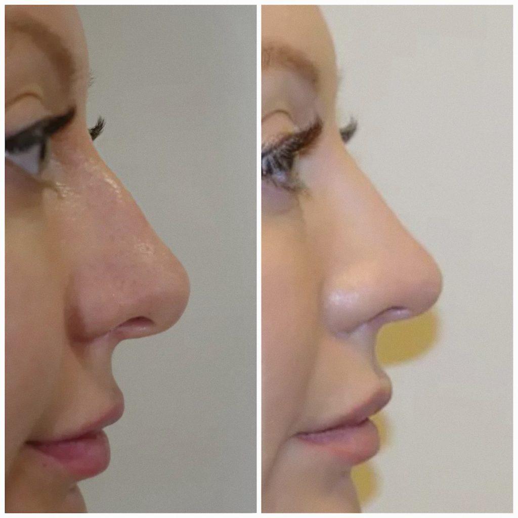 Rinoplastikoj po nosu3