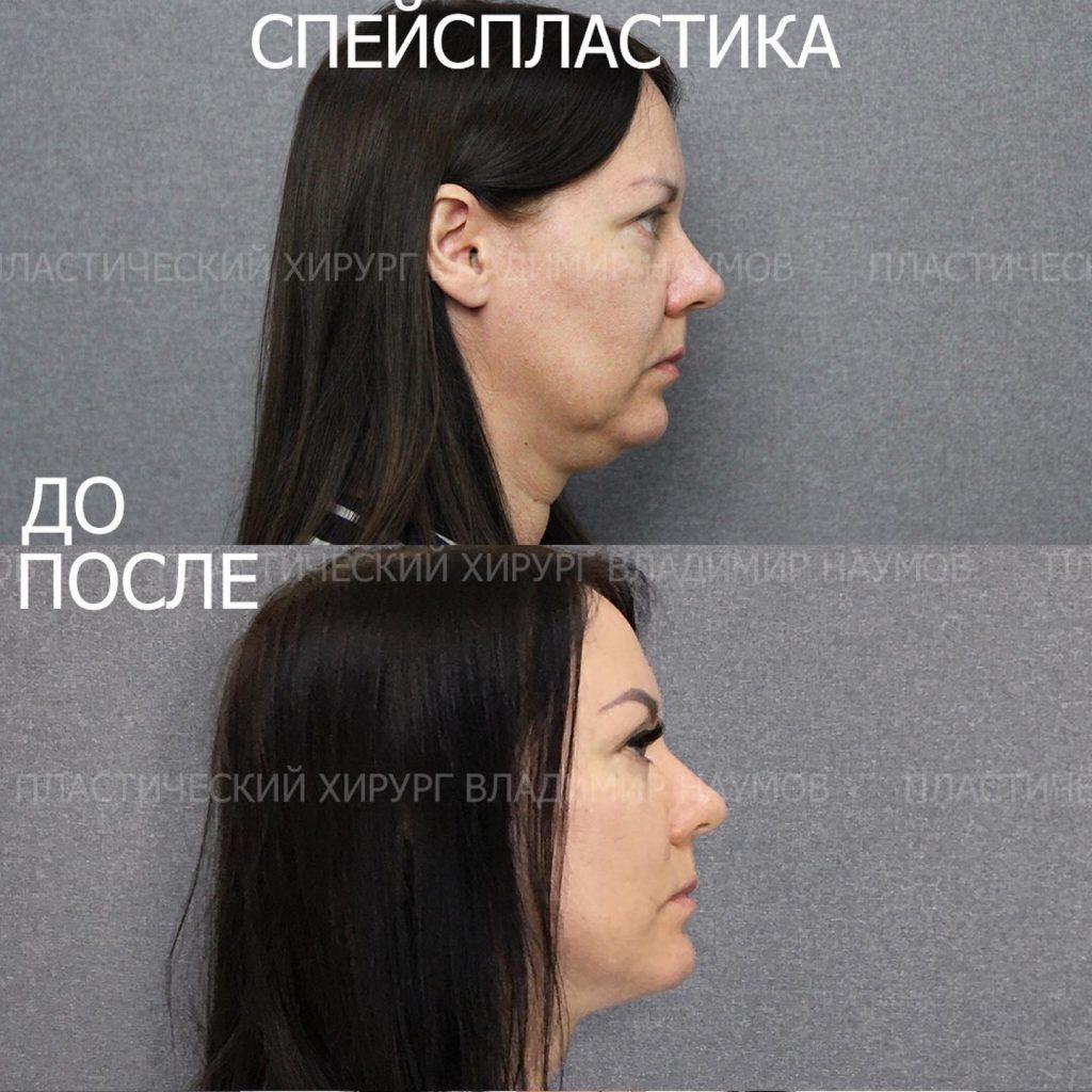 Image 22 06 21 09 00 1