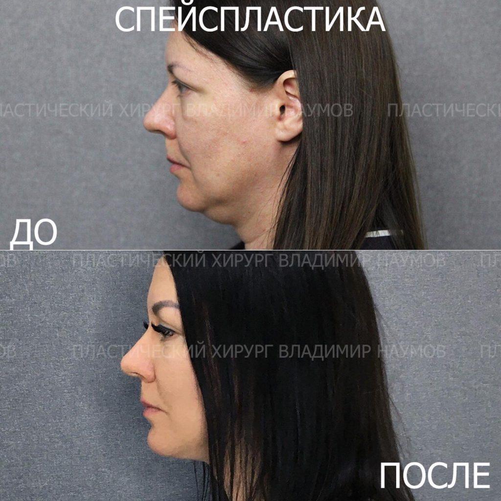 Image 22 06 21 09 00