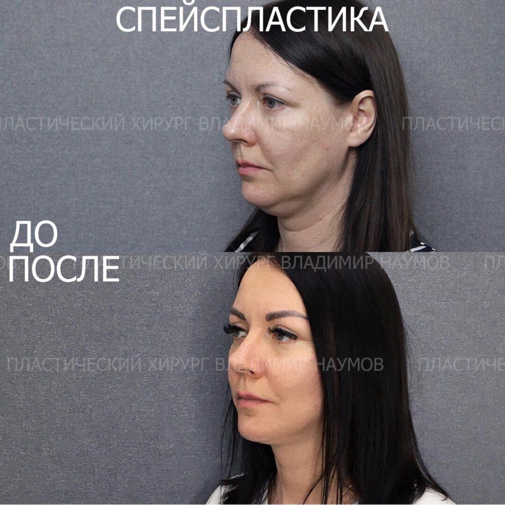 Image 22 06 21 09 00 2