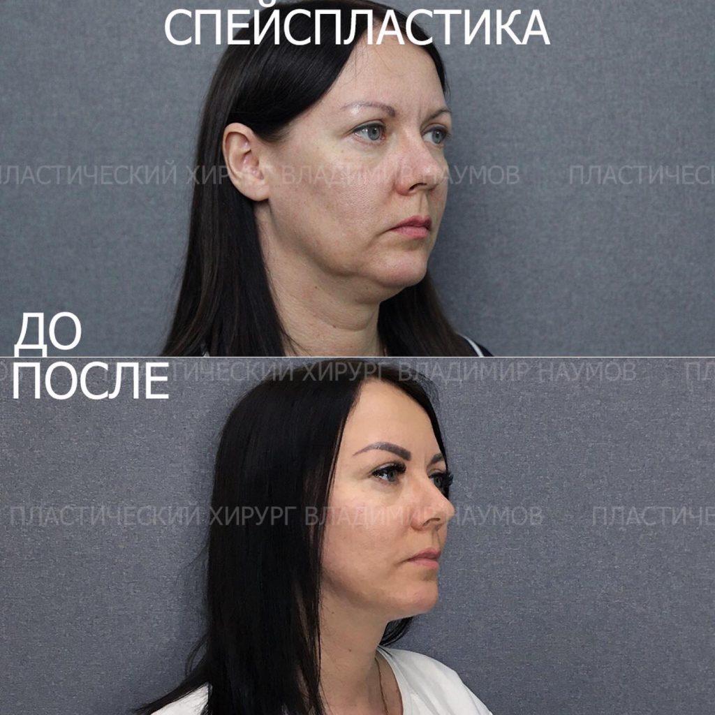 Image 22 06 21 09 00 4