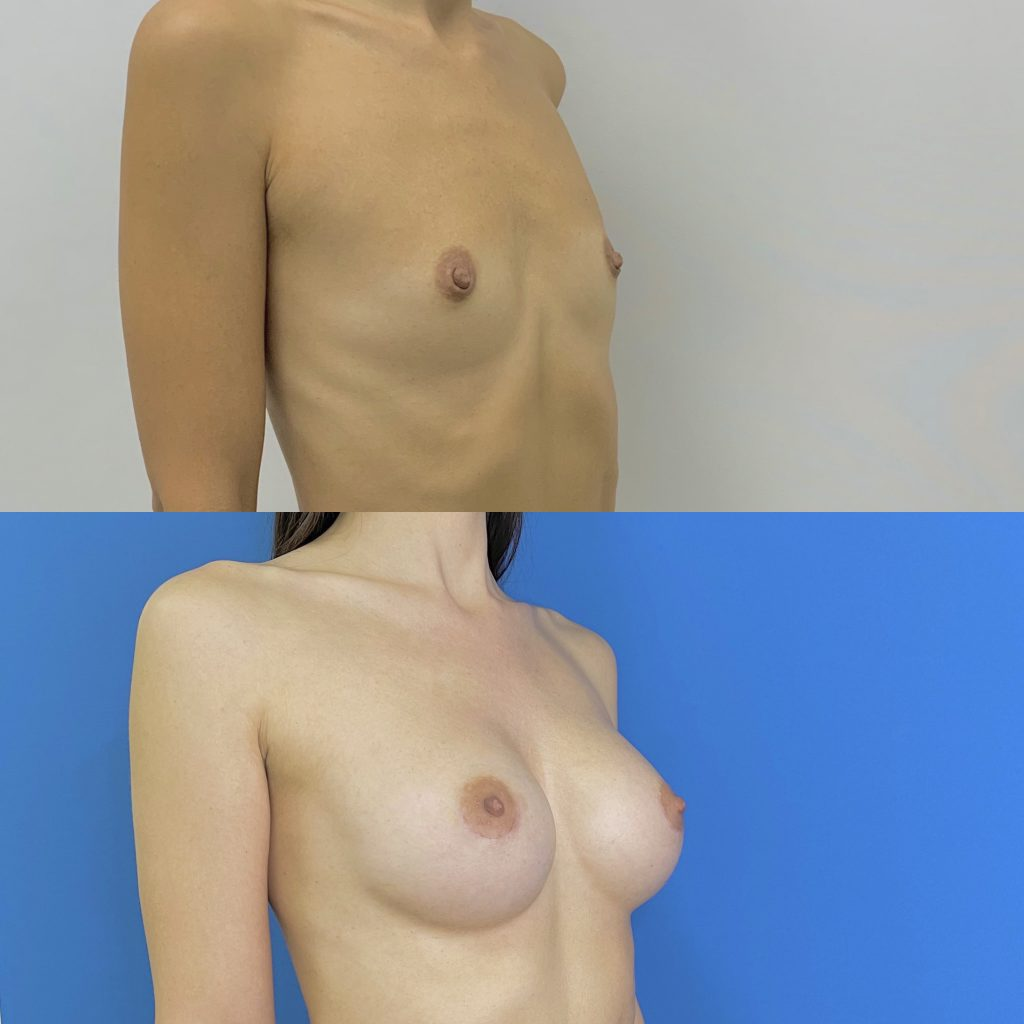 Glavnoe o mammoplastike 1