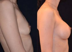 Увеличение груди Алексанян Т.А.jpg