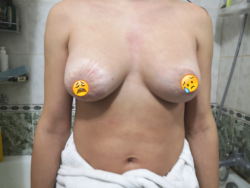 бесшовная хирургия вардана 2.png