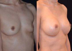 Увеличение груди клиника ArtPlastic.jpg
